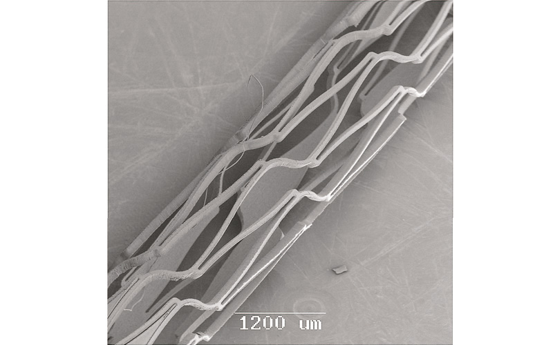 Stents cut from the Nitinol. Courtesy of CORTTRONIK GmbH & Co, KG